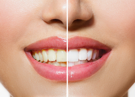 Tooth Whitening Cosmetic Dentistry Chesterfield